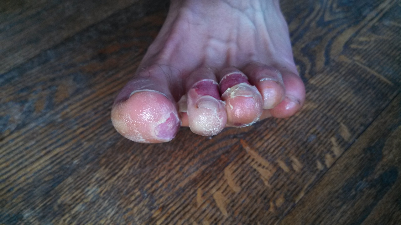 Blisters On My Toes From Shoes